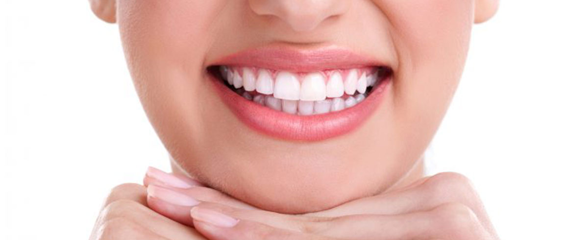 Smile! What's the Best Professional Teeth Whitening Option for You?