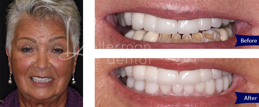 Before and After Result - Glen Carbon, IL